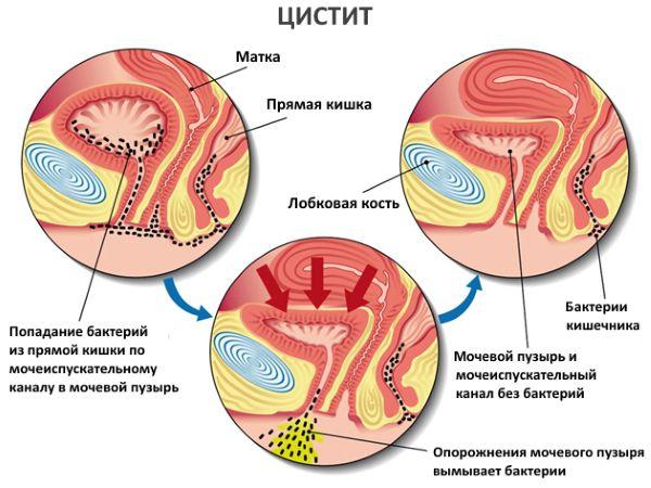 Цистит: симптомы, диагностика, лечение — медцентр Аксис (Зеленоград)